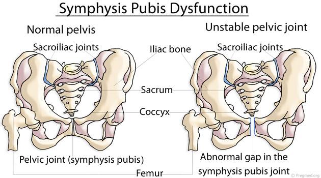 Symphysis-Pubis-Dysfunction